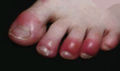 Covid toes 4